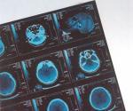 デジタル病院の CR/DR のための医学 X 光線の乾燥したフィルムの上昇温暖気流