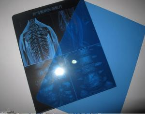 China Bluish Polyester Base Laser X Ray Film Used In Thermal Camera on sale