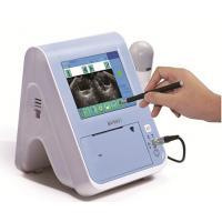 BVT01 Bladder scanner