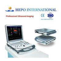 "Portable 3D/4D color doppler 15"" monitor use for clinic medical equipment digital ultrasound scanner"
