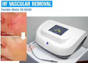 China Painless 30MHz High Frequency Skin Care Machine For Spider Vein Treatment on sale