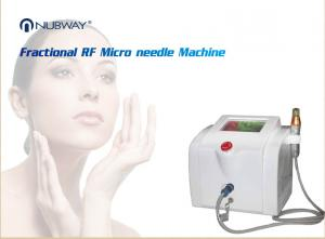 China CE Approval 30MHZ High Frequency Non-invasive Portable varicose veins laser treatment machine spider vein removal machin on sale