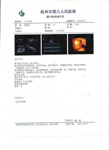 China medical dry film,  x ray film on sale