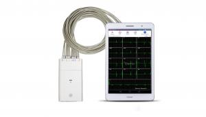 China White ECG Signal Recorder Andriod System Bluetooth ECG Machine on sale