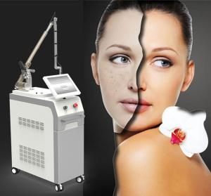 China Factory price 1064&532nm Q switched 6ns pigmentation removal nd yag laser on sale