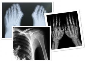 China Thermal Digital X Ray Film Fuji Medical For Radiography Examination on sale