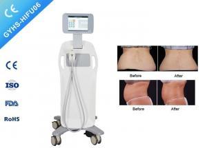 ISO Ultrasound Face Lift Machine HIFU Treatment For Fat Loss
