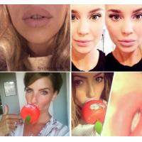 Large Round Double Lobed CandyLipz Lip Plumper Device with Apple Shape