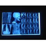 低い霧 AGFA5300/Fuji3000 14 x 17inch のための医学の乾燥したイメージ投射フィルム