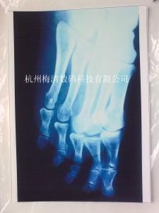 China CT-8   Dry film    Dry laser film    CT-8 laser jet printing hospital x-ray camera sli on sale