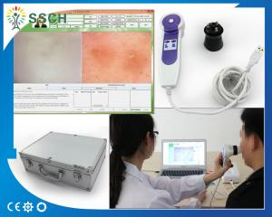 China Professional Beauty Equipment Skin Hair Analyzer For Dead Skin Diagnostic Equipment on sale