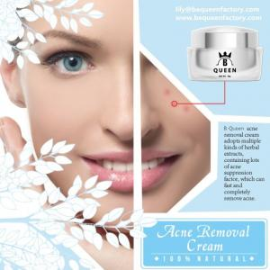 China Best Acne Scar Treatment Cream for Skin Anti-Acne Night Cream on sale