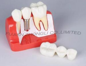 China Dental Implant 3 Unit Bridge 3 Crowns Set of 6 Parts Model 4 Times Life-Size Reconstruction on sale