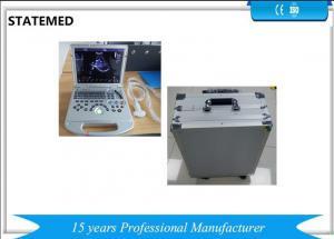 China Color Doppler Portable Ultrasound Scanner 128 E high Definition 3D 4D Notebook on sale