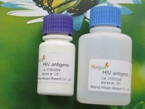 China HIV p24 monoclonal antibody on sale
