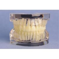 Transparent Standard Upper and Lower Jaw Model for Medical College Training