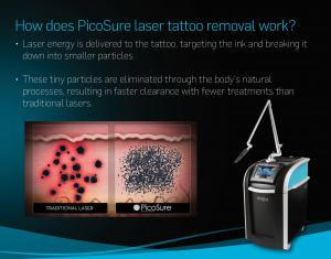 China Long Pulse Nd Yag Laser Picosecond Laser Tattoo Removal Machine Ce Certificated on sale