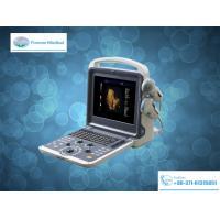 Diagnostic System Full Digital Color Doppler Ultrasound Scanner (YJ-U60)