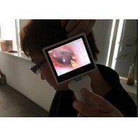 Mobile Wifi Model Handheld Digital Video Otoscope Laryngoscope And Rhinoscope with Mini USB Recharge