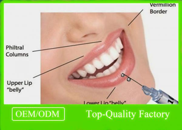 Lip Dermal Fillers Hyaluronic Acid Lip Filler Higher Content