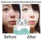 B-Queen OEM/ODM Skin Care acne treatment removing anti acne cream