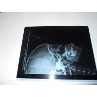 KND-A Environment friendly Medical Dry Imaging Film For X Ray Examination On AGFA 5300