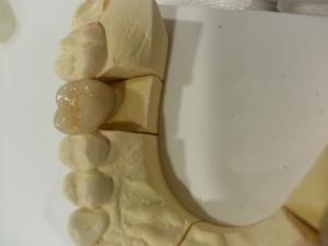 China Dental PFM crown/ Dental porcelain fused to metal crown with good esthetics on sale
