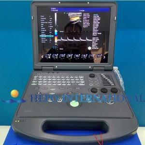 China 15 inch monitor portable 3D color doppler digital ultrasound scanner used in hospital and clinic on sale