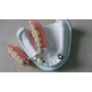 China Implantable Telescopic Crowns Dentures For Restoring Mouth State Corrosion Resistance on sale