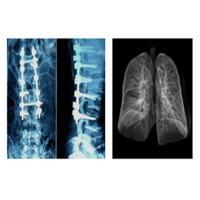 Sharp Radiographic Medical X Ray Films , Mri Dr Ct Digital Dry Imaging Film