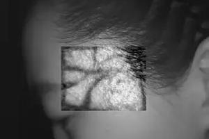 China 10mm Imaging Depth Desktop Infrared Vein Finder Hospital Medical Equipment on sale