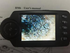 China Skin Analysis Otoscope Ophthalmoscope Hair Digital Camera 640X480 on sale