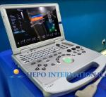 15 monitor 3D/4D ultrasound scanner use for cardiac medical device