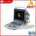 Great Performance 3D/4D Color Doppler Ultrasound