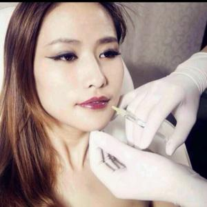 China Hyaluronic acid filler Anti-wrinkle long-term effective stable cross-linked on sale