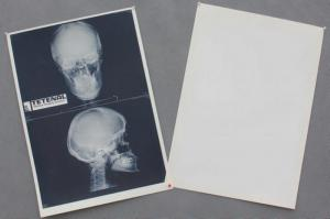 China medical x ray film on sale