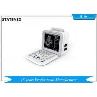 White Ultrasound Scan Equipment For Abdominal / Obstetrics / Gynecology