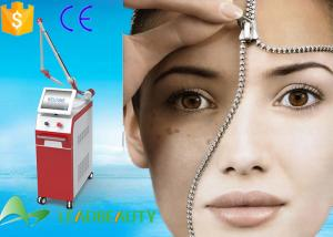 China 1064nm 532nm long pulse nd yag laser q switched pigment lesions nd yag tattoo removal equipment on sale
