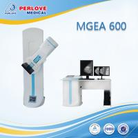 DR x-ray machine mammogram screening MEGA 600