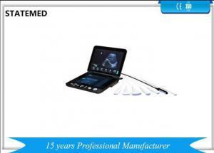 China Pregnancy Portable Ultrasound Scanner , Ipad Ultrasound Scanner High Definition Image on sale