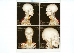 China High Density Medical X Ray Film Blue For Konida Laser Printer on sale