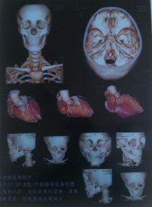 China medical x ray dry laser film on sale
