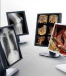 Clear picture Medical Grade Displays , 5MP Gray Scale Medical Display
