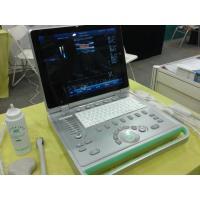 3D Laptop Ultrasound Scanner Color Doppler Machine With Large Volume Hardisk