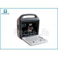 3D/4D Color Ultrasound System Ultrasonic Color Image Doppler Scanner