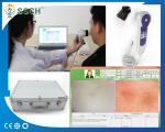 Smart High Resolution USB Skin Scope Analyzer & Hair Analyser Machine Face Skin Care Products