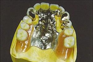 Durable dental precision attachments telescopic crown and