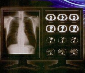China Bright Clear Digital X Ray Film , Konida Medical Laser Transparency Film on sale
