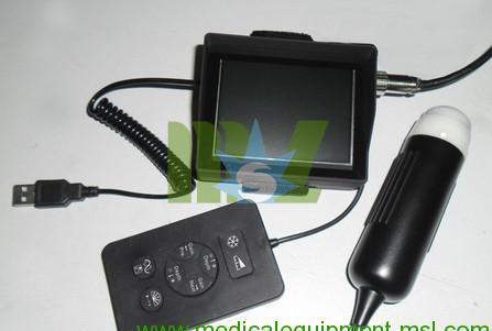 wrist ultrasound scanner