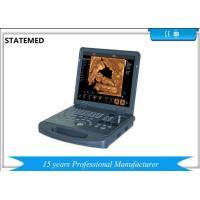 High Definition Image Portable Ultrasound Scanner 3d 4d For Pregnancy